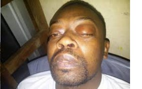 Cameroun: évacuation d'urgence du Français Jean-Emmanuel Foumbi en France