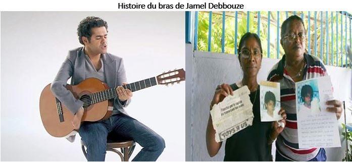 FRANCE – Histoire du bras de Jamel Debbouze